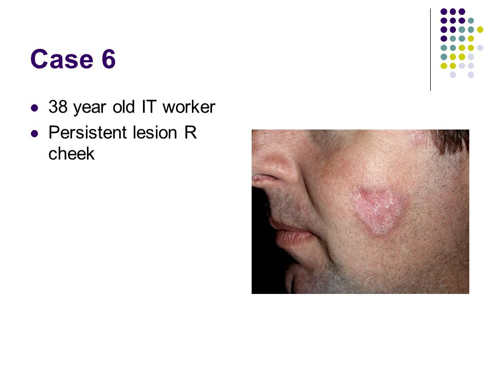 Case 6 38 year old IT worker Persistent lesion R cheek