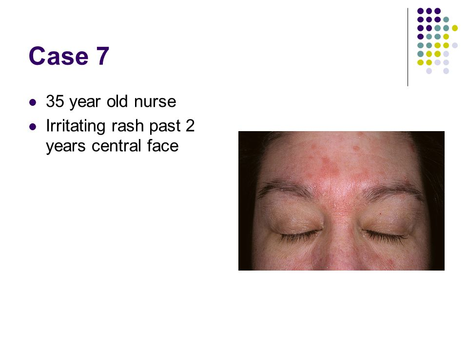 Case 7 35 year old nurse Irritating rash past 2 years central face