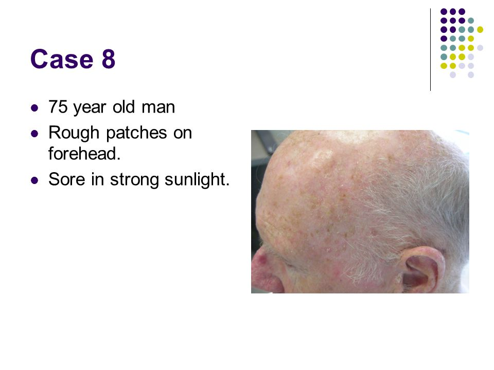 Case 8 75 year old man Rough patches on forehead.