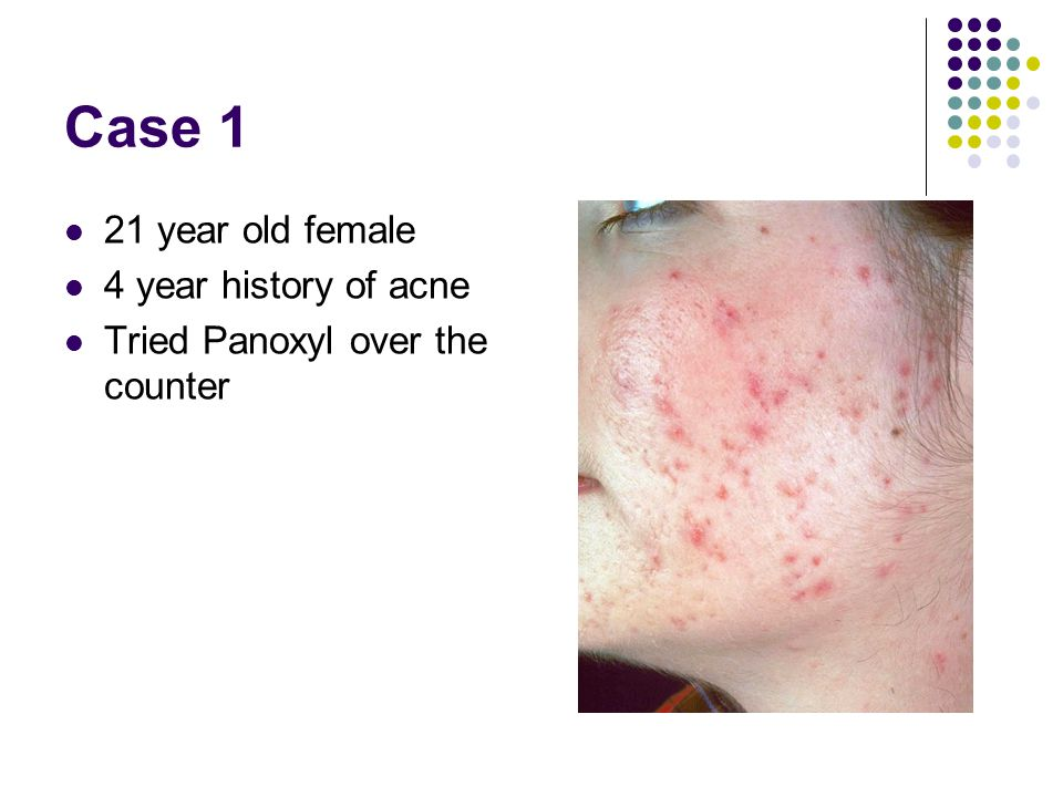 Case 1 21 year old female 4 year history of acne