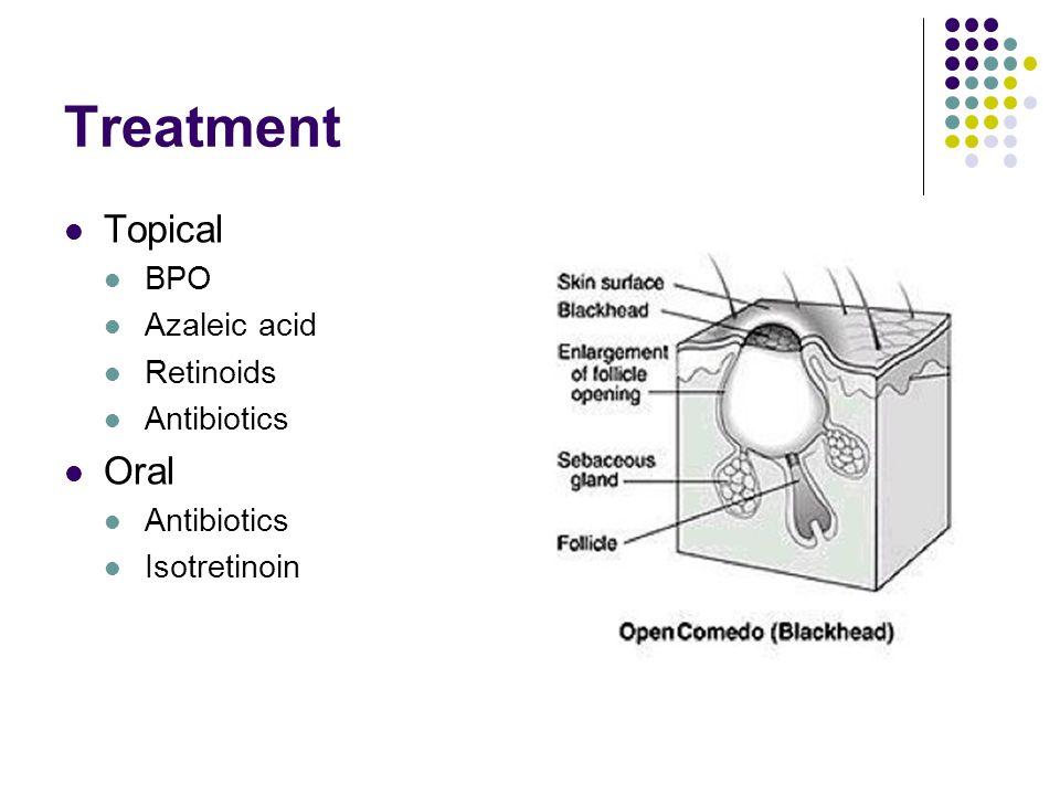 Treatment Topical Oral BPO Azaleic acid Retinoids Antibiotics