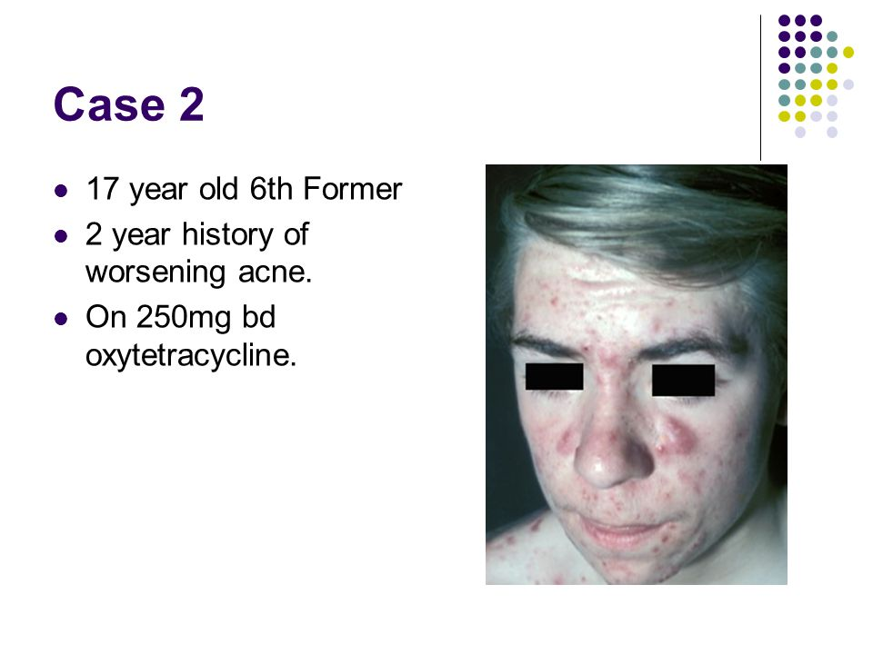 Case 2 17 year old 6th Former 2 year history of worsening acne.