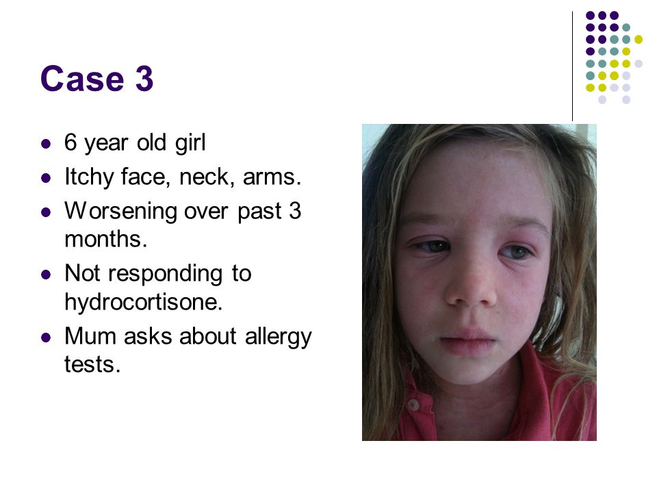 Case 3 6 year old girl Itchy face, neck, arms.