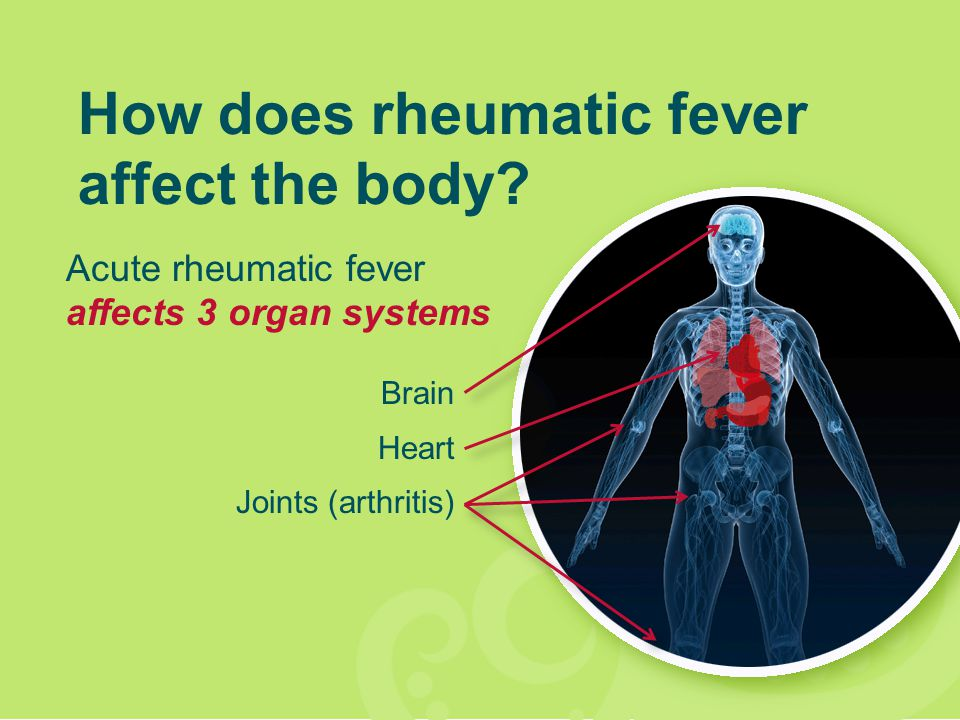 How does rheumatic fever affect the body