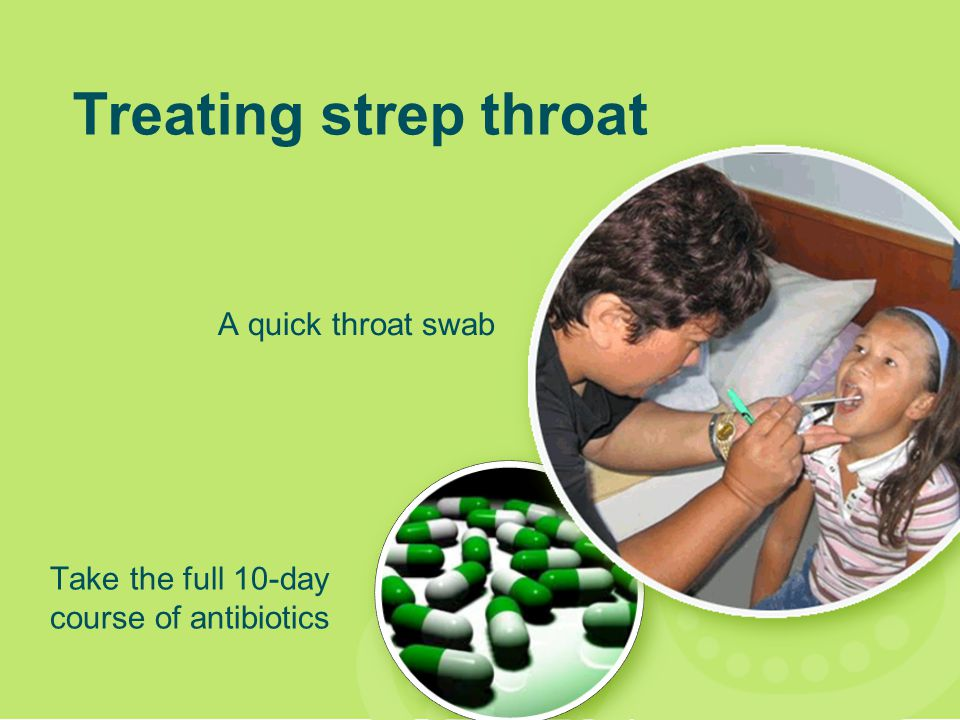 Treating strep throat A quick throat swab