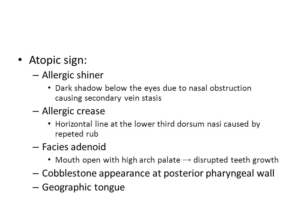 Atopic sign: Allergic shiner Allergic crease Facies adenoid