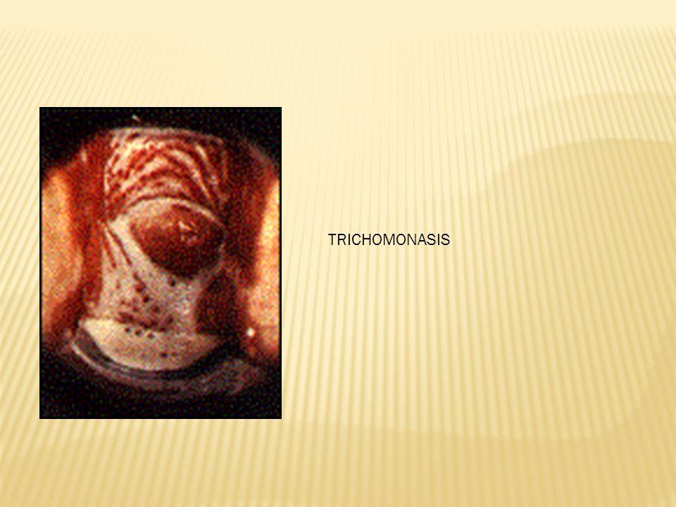 TRICHOMONASIS