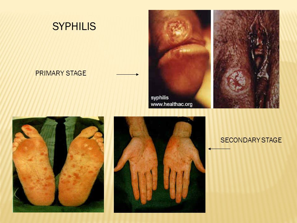 SYPHILIS PRIMARY STAGE SECONDARY STAGE