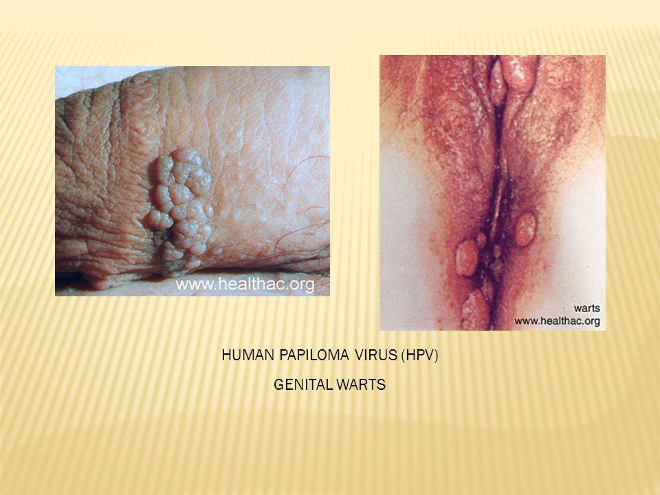 HUMAN PAPILOMA VIRUS (HPV)