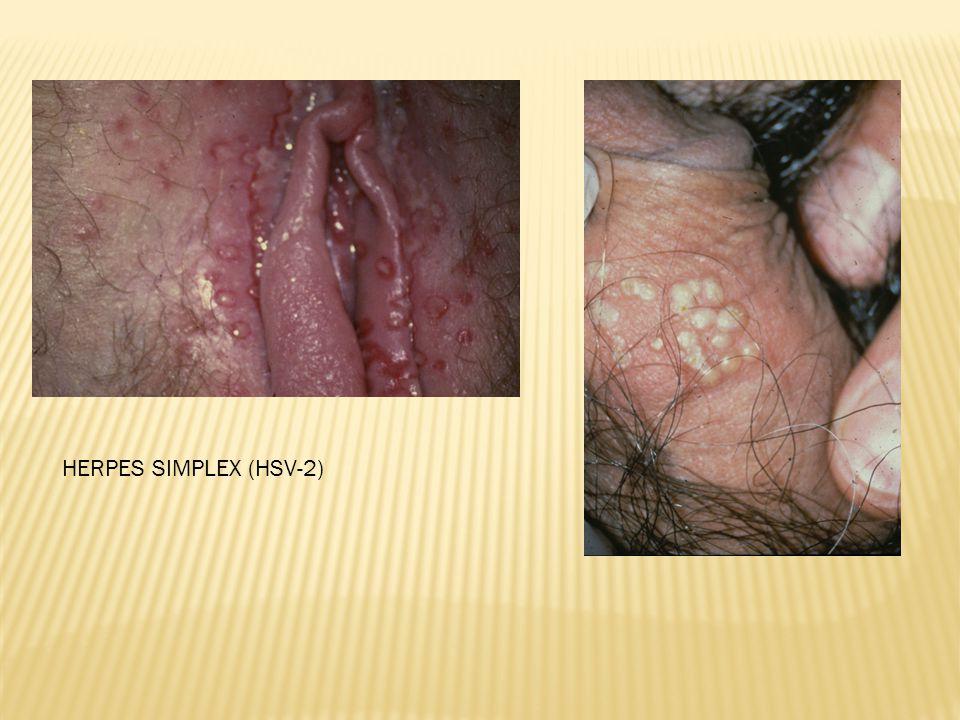 HERPES SIMPLEX (HSV-2)