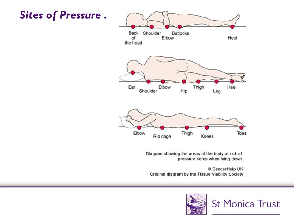 hsc 2024 undertake agreed pressure area Hsc 2024: level 3 (group c optional unit) undertake agreed pressure area care  by the end of the unit you will be expected to: 1) understand the anatomy and.