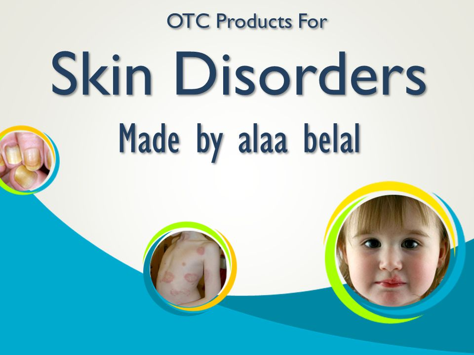 OTC Products For Skin Disorders Made by alaa belal