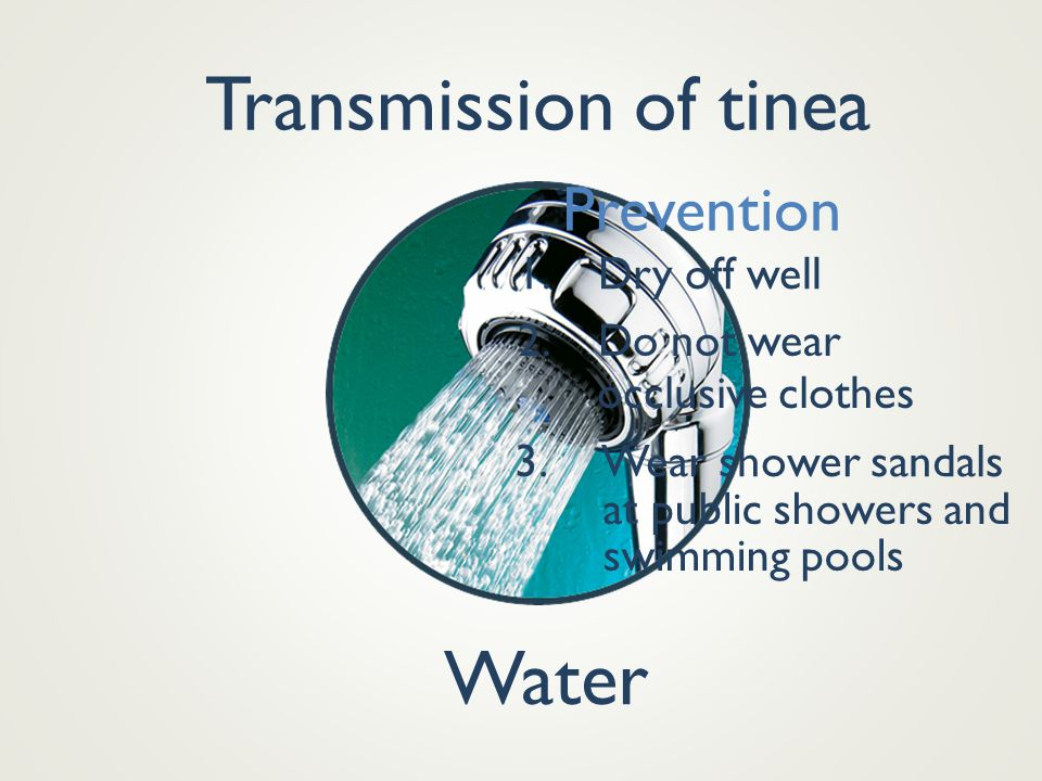 Transmission of tinea Water Prevention 1. Dry off well 2. Do not wear