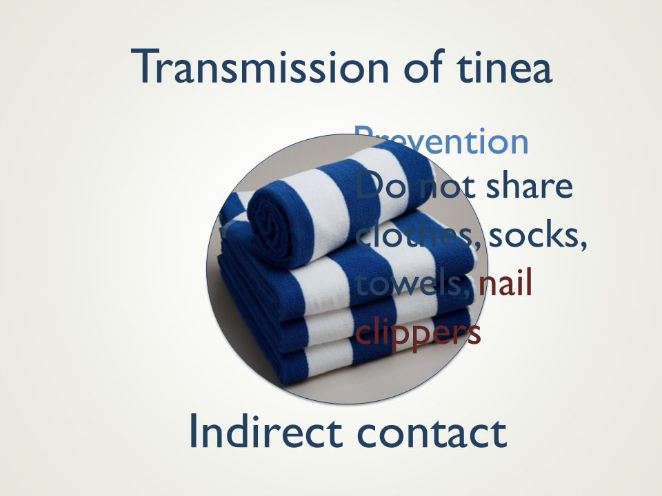 Transmission of tinea Indirect contact Prevention