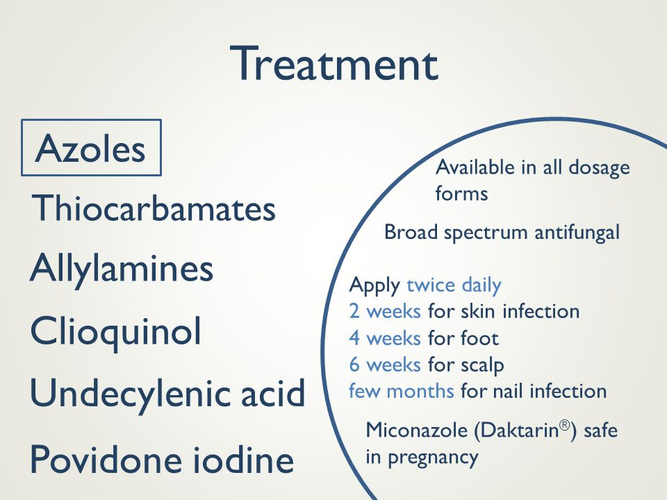 Treatment Azoles Allylamines Clioquinol Undecylenic acid