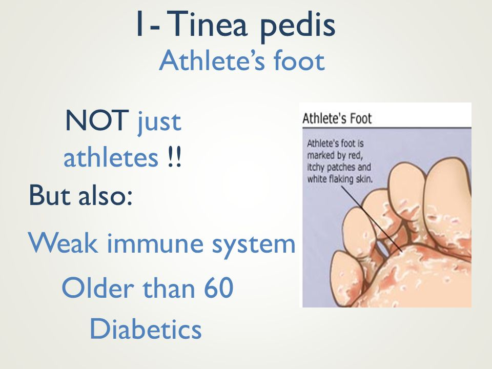 1- Tinea pedis Athlete's foot NOT just athletes !! But also: