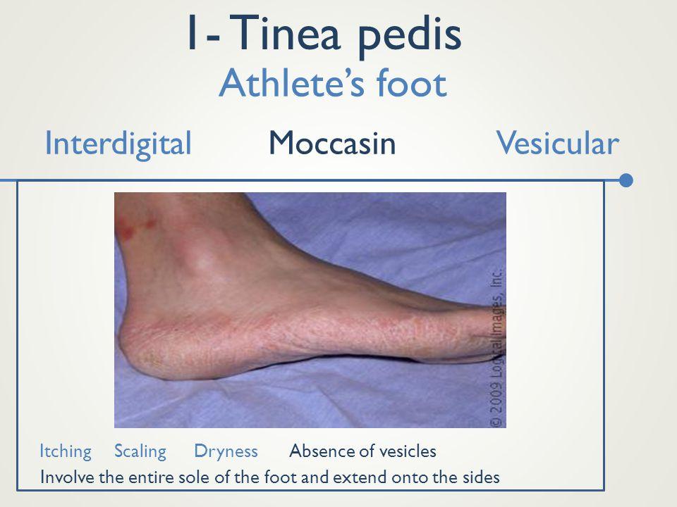 1- Tinea pedis Athlete's foot Interdigital Moccasin Vesicular Itching