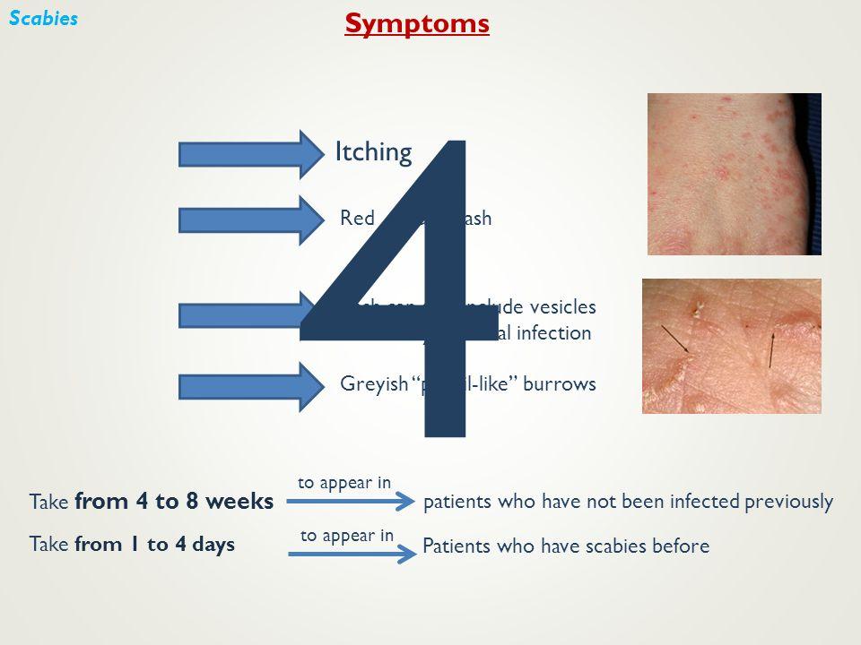 4 Symptoms Itching Scabies Red papular rash