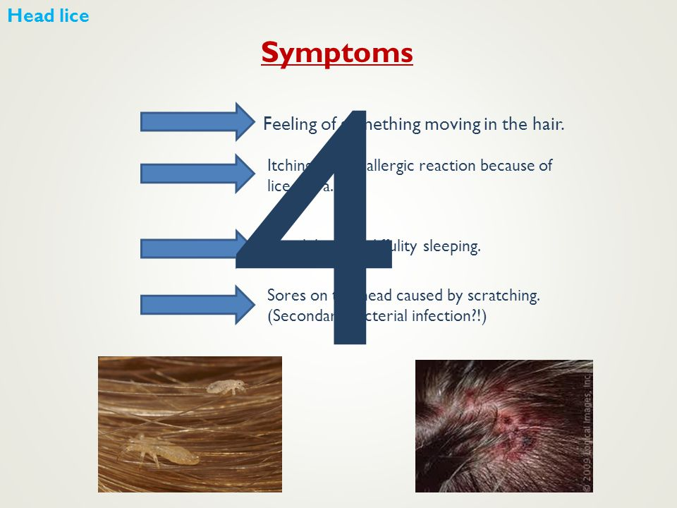 4 Symptoms Head lice Feeling of something moving in the hair.