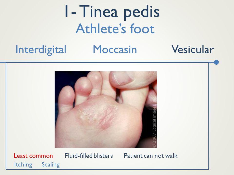 1- Tinea pedis Athlete's foot Interdigital Moccasin Vesicular