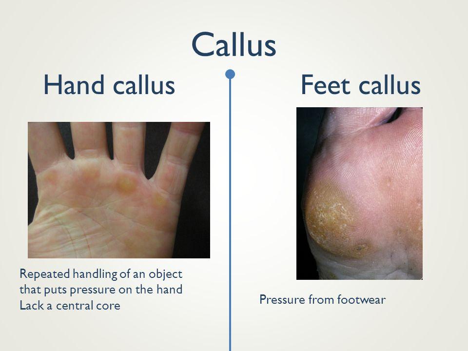 Callus Hand callus Feet callus