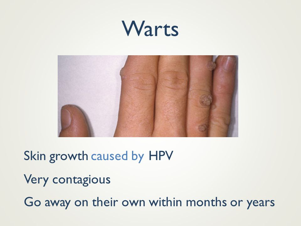 Warts Skin growth caused by HPV Very contagious