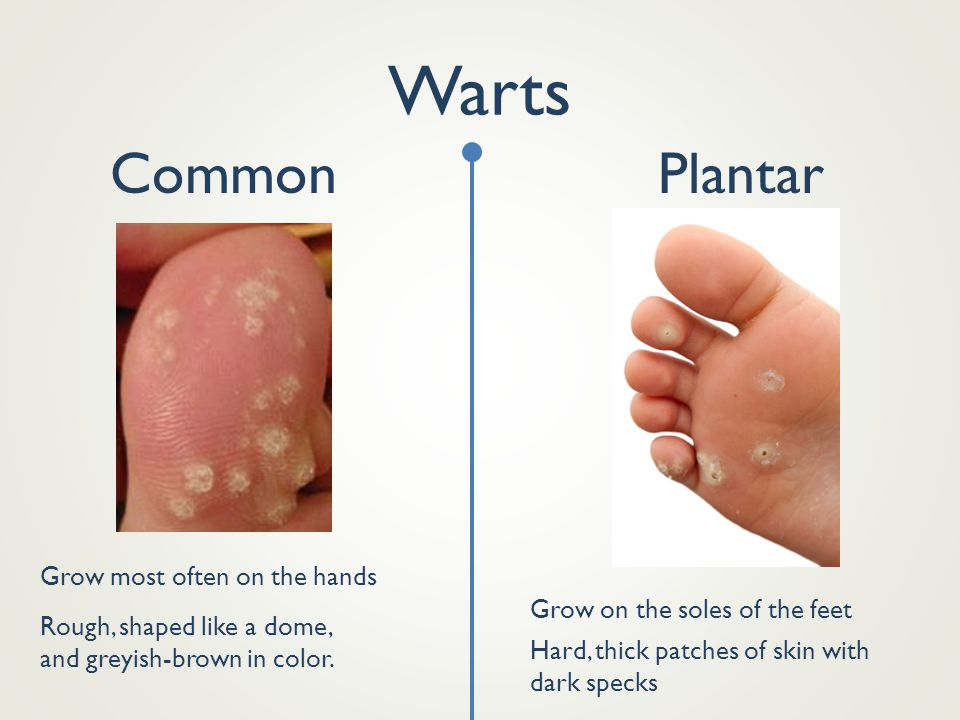 Warts Common Plantar Grow most often on the hands