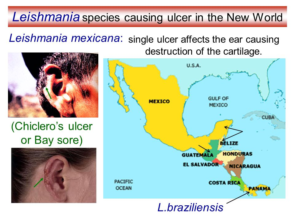 Leishmania species causing ulcer in the New World
