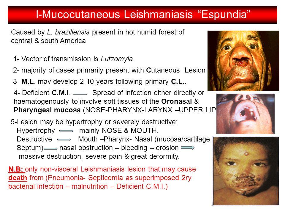 I-Mucocutaneous Leishmaniasis Espundia