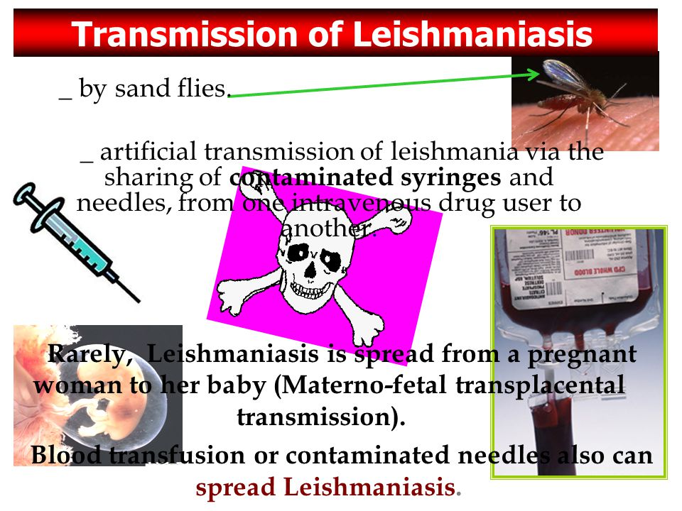 Transmission of Leishmaniasis