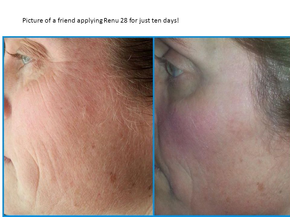 Picture of a friend applying Renu 28 for just ten days!