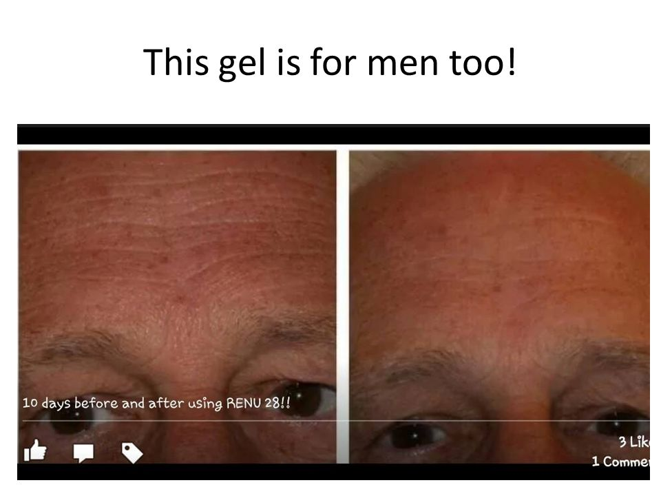 This gel is for men too!