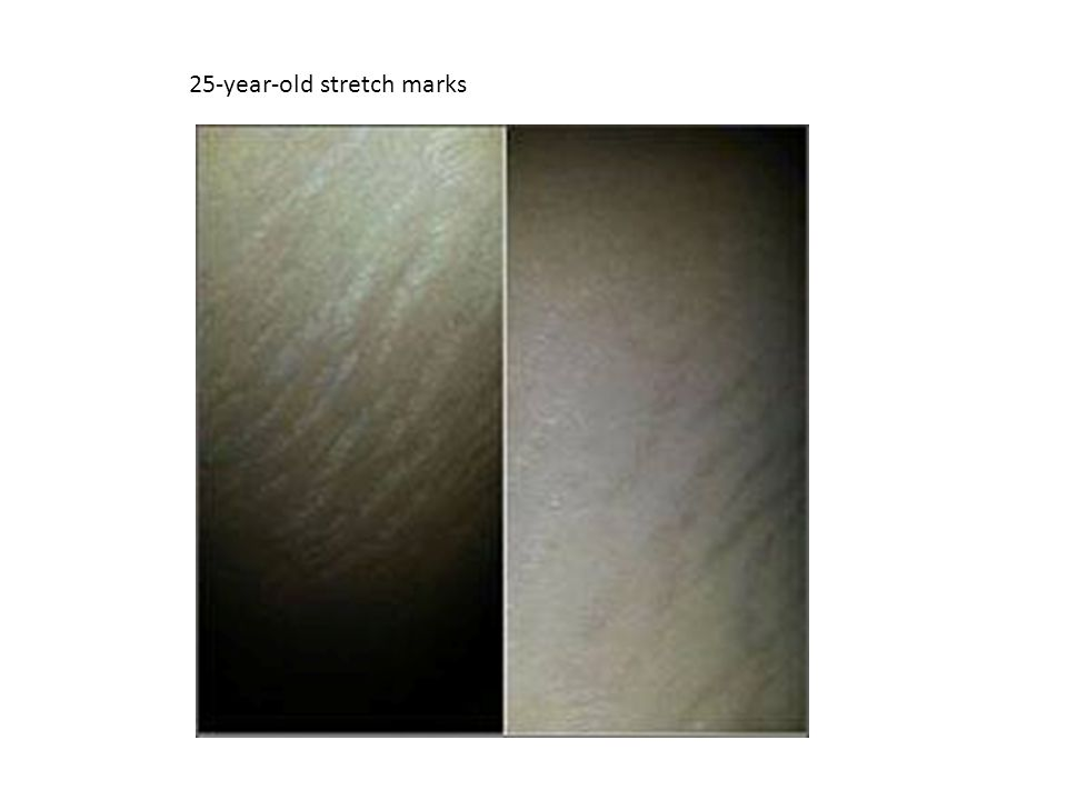 25-year-old stretch marks