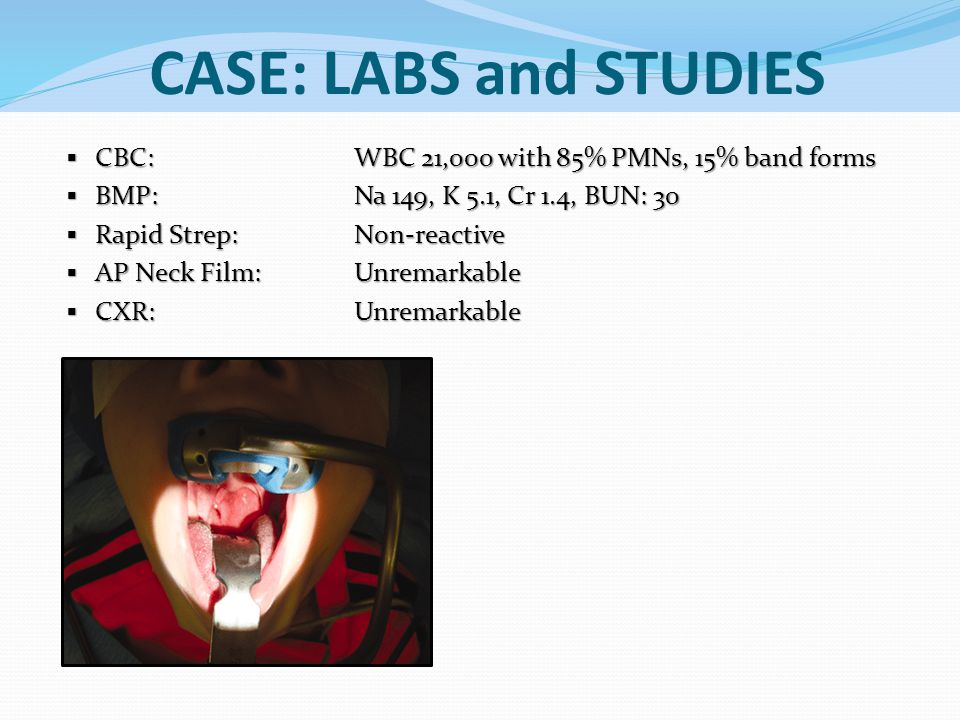 CASE: LABS and STUDIES CBC: WBC 21,000 with 85% PMNs, 15% band forms