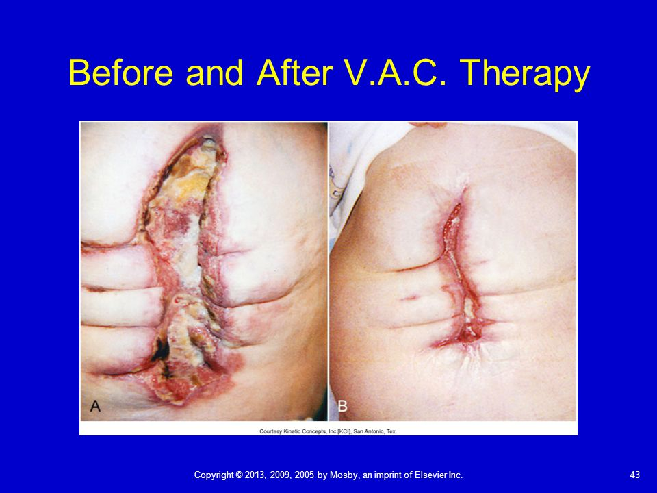 Before and After V.A.C. Therapy