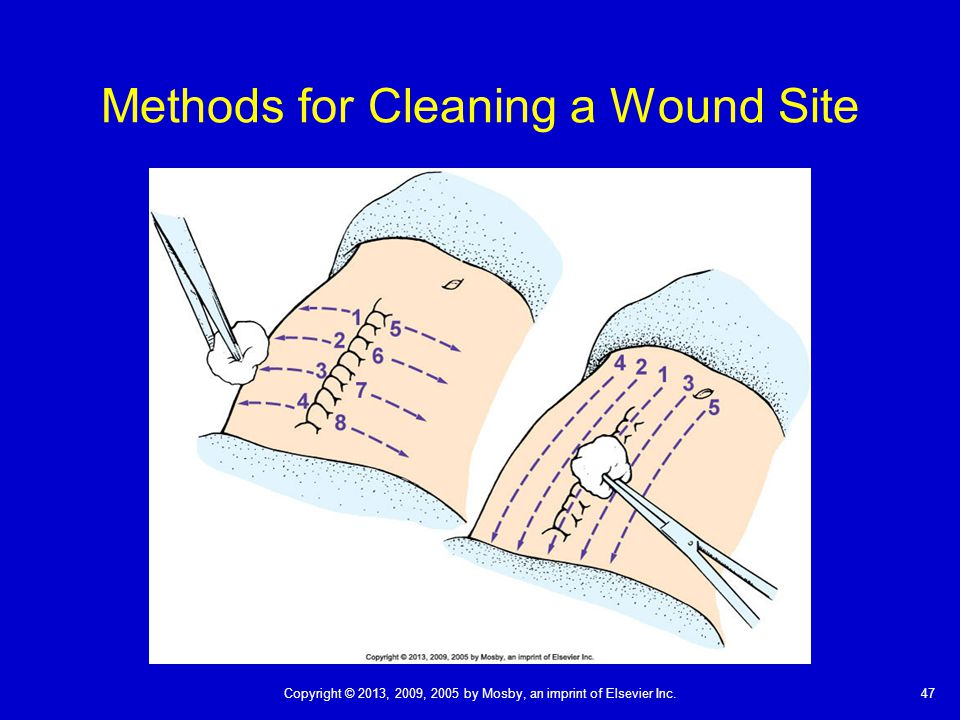Methods for Cleaning a Wound Site