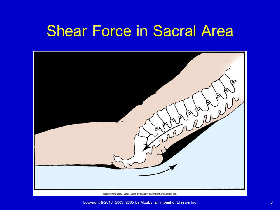 Shear Force in Sacral Area