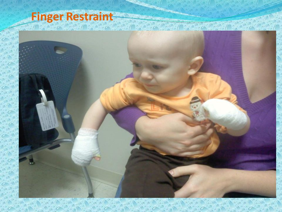 Finger Restraint