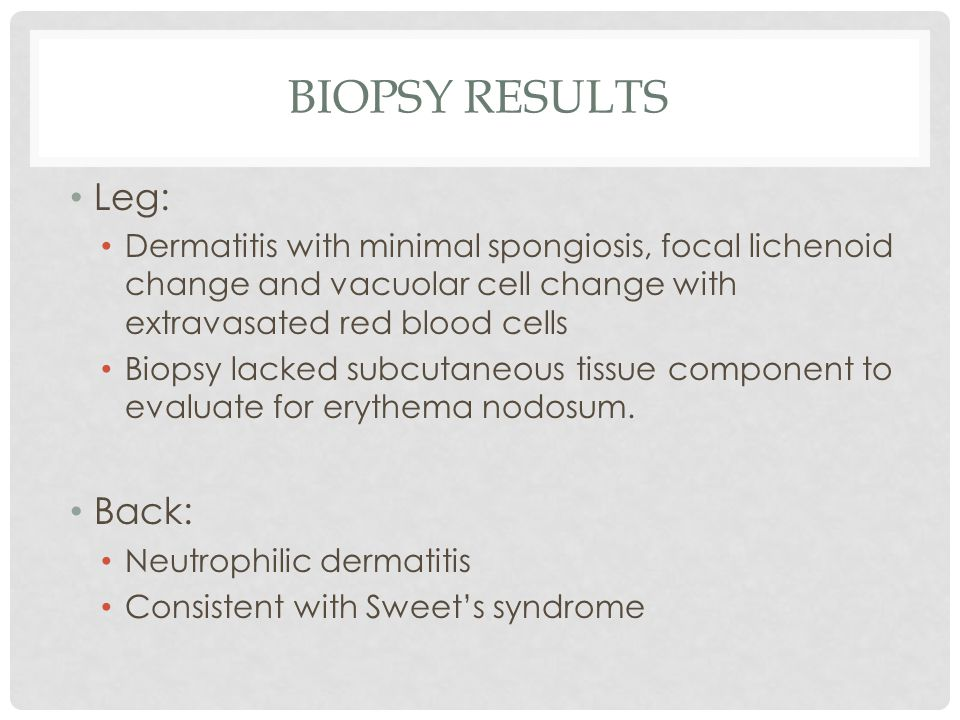 Biopsy Results Leg: Back: