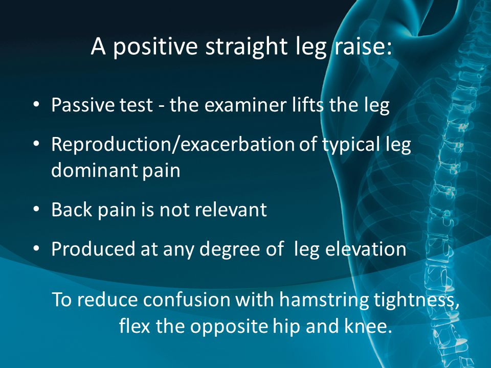 A positive straight leg raise: