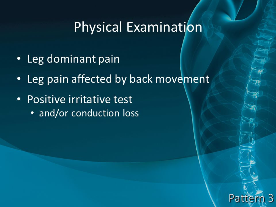 Physical Examination Leg dominant pain