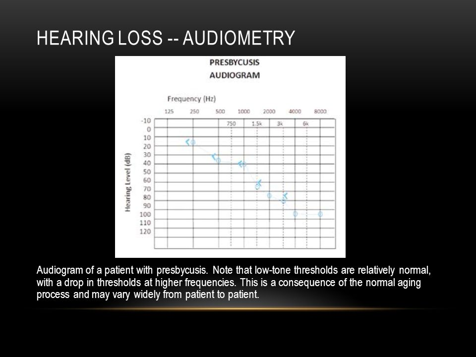 Hearing loss -- audiometry