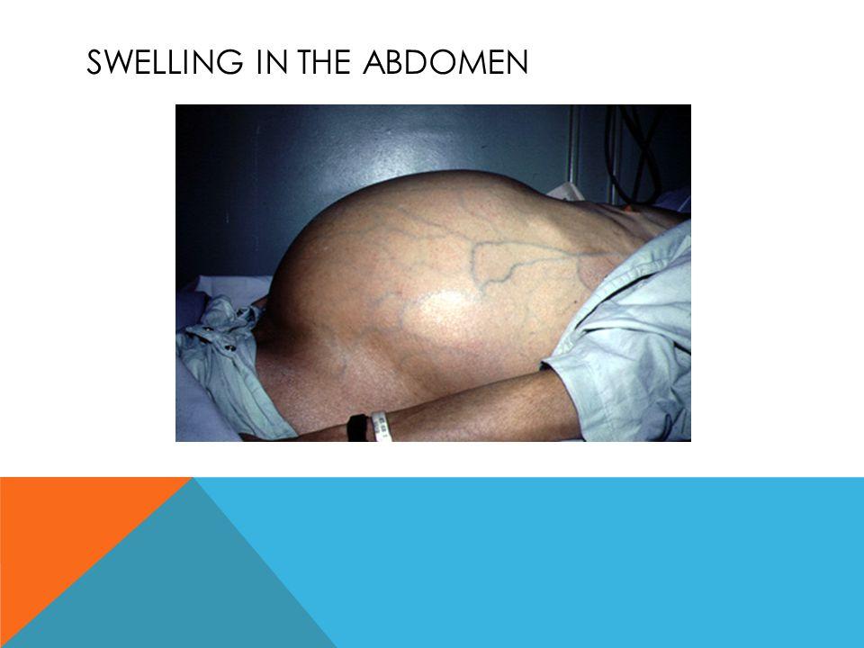 Swelling in the abdomen
