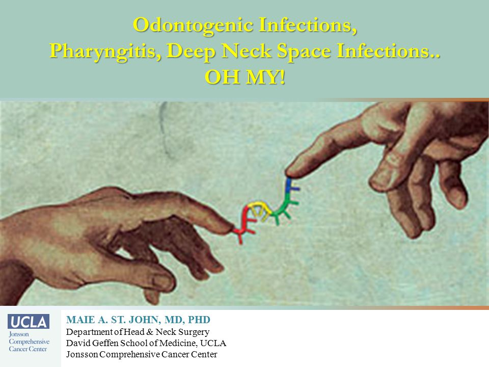 Odontogenic Infections, Pharyngitis, Deep Neck Space Infections..