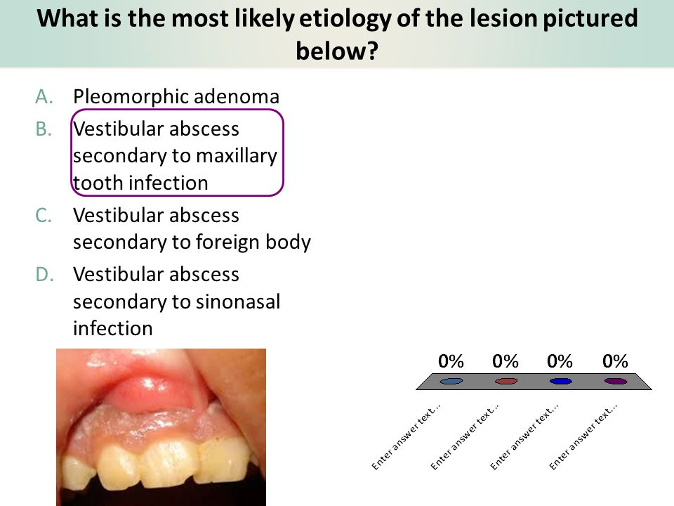 What is the most likely etiology of the lesion pictured below