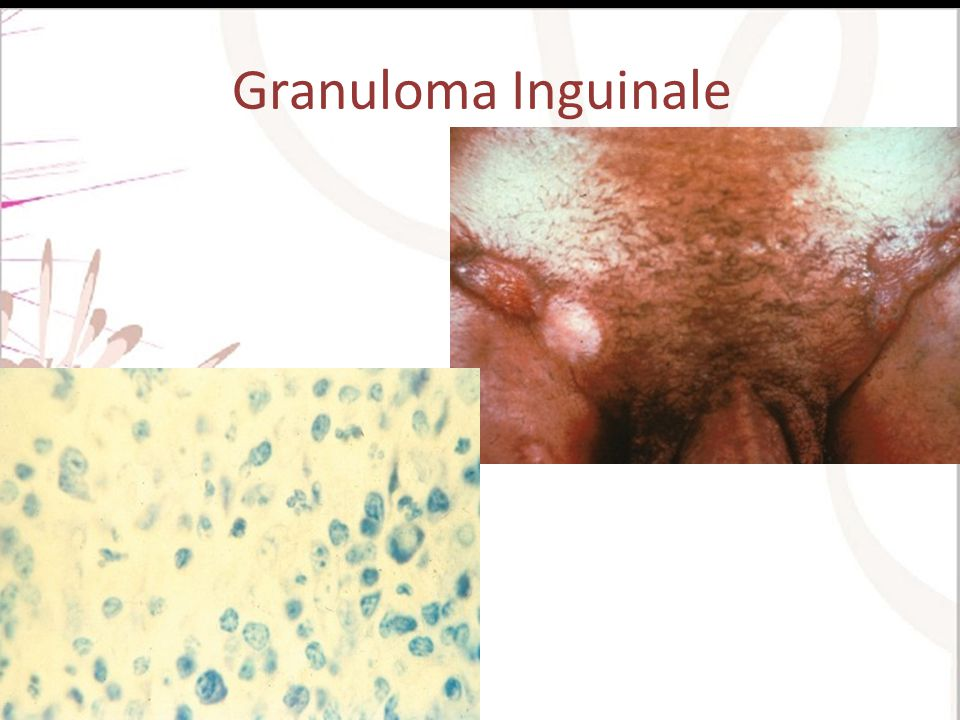 Granuloma Inguinale