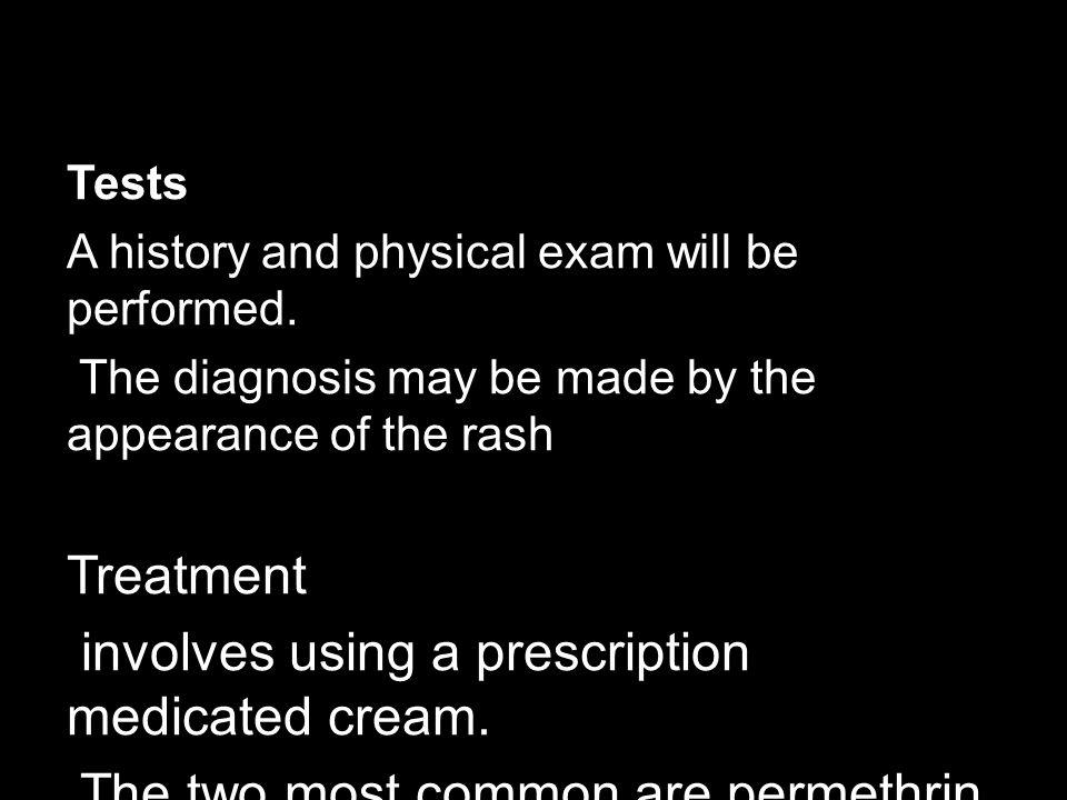 involves using a prescription medicated cream.
