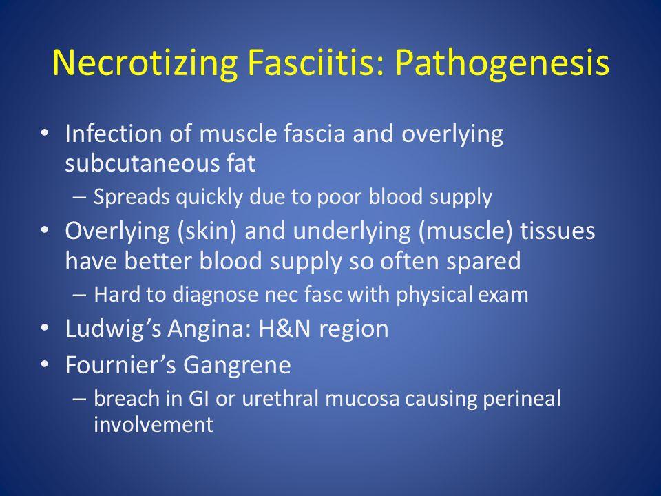 Necrotizing Fasciitis: Pathogenesis