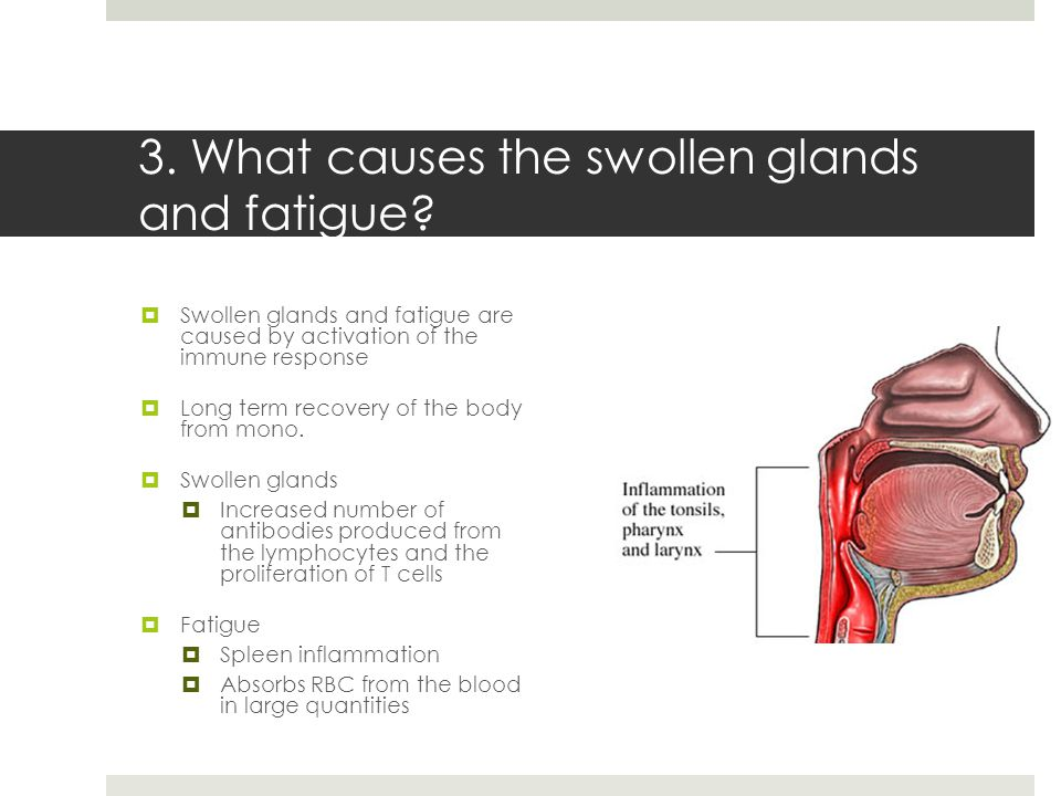 3. What causes the swollen glands and fatigue