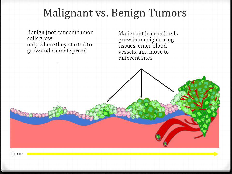 Malignant vs. Benign Tumors